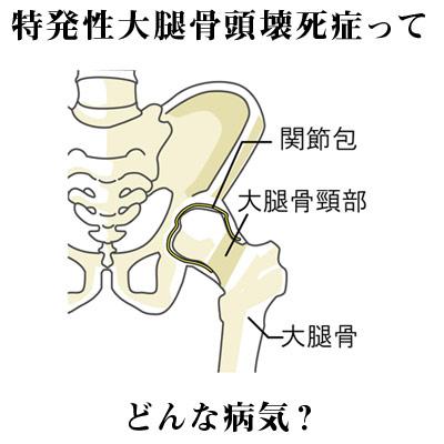 股関節の名称